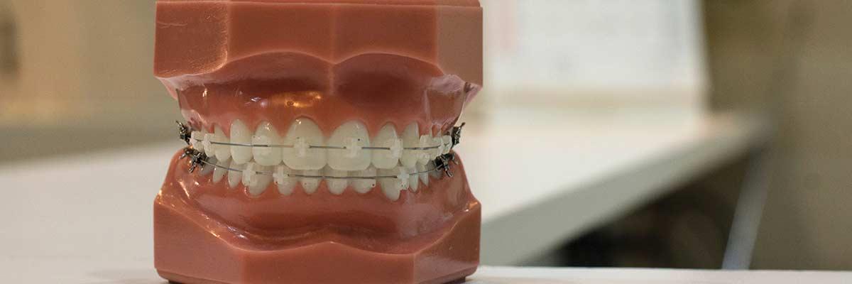modello apparecchio dentale